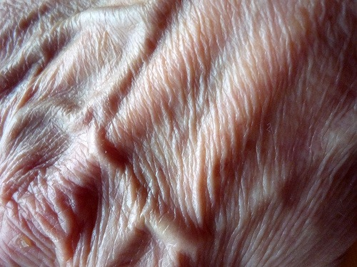 how to fix wrinkled hands